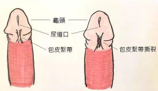 包皮系带过短的诊断与治疗
