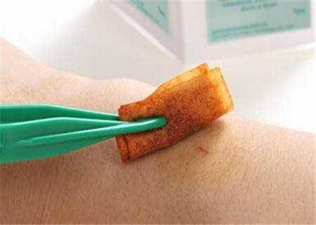 包皮手术后如何消毒护理、防止感染?【真图】