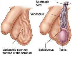 「精索静脉曲张」手术后复发及其处理?