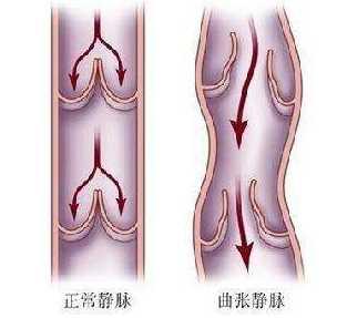 陈善闻博士带您了解「精索静脉曲张」的来龙去脉